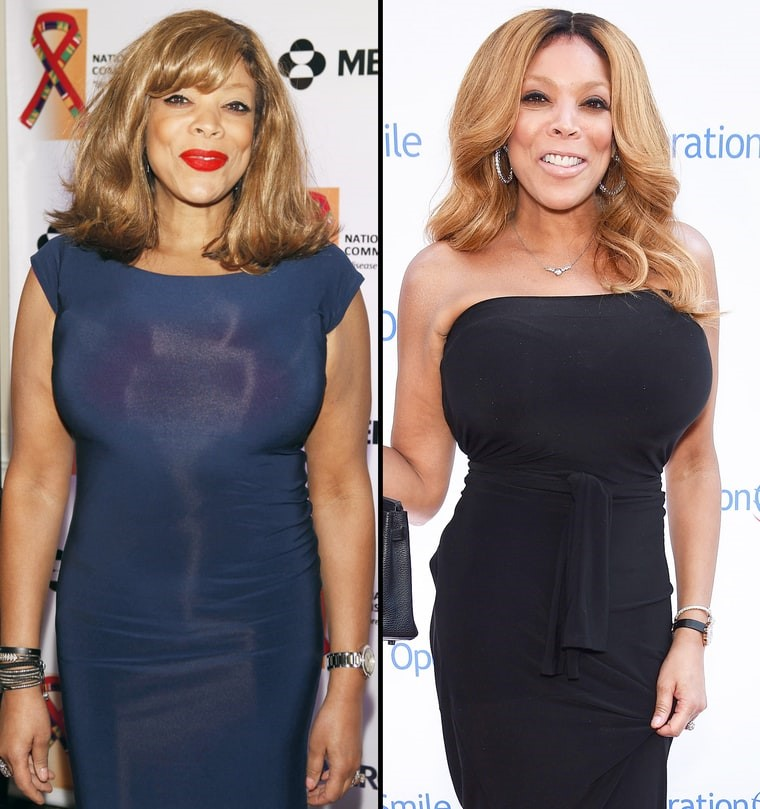WENDY WILLIAMS NOW AND THEN PHOTOS